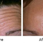 deep-forehead-wrinkles