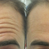 best-treatment-forehead-wrinkles
