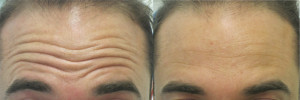 best-treatment-forehead-wrinkles