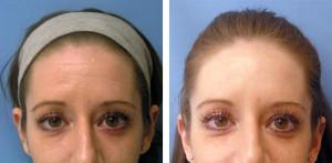 forehead-wrinkles