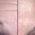 how-get-rid-deep-forehead-wrinkles