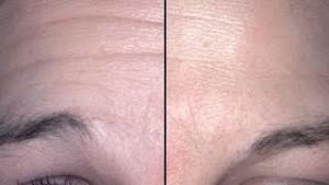 how-get-rid-deep-forehead-wrinkles