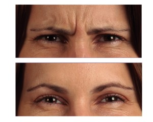 reduce-frown-lines