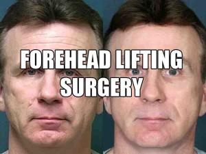 forehead-lift-surgery