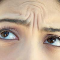 hide-deep-forehead-wrinkles-makeup