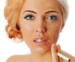 diminish-forehead-wrinkles