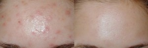 fast-way-get-rid-forehead-acne