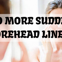 no sudden lines on forehead