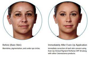 best safe filler forehead lines