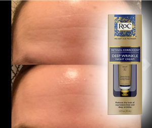 roc night cream for forehead wrinkles